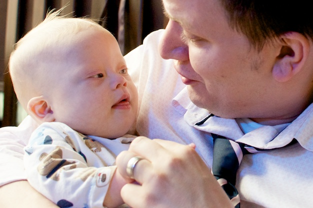 down-downs-syndrome-father-son